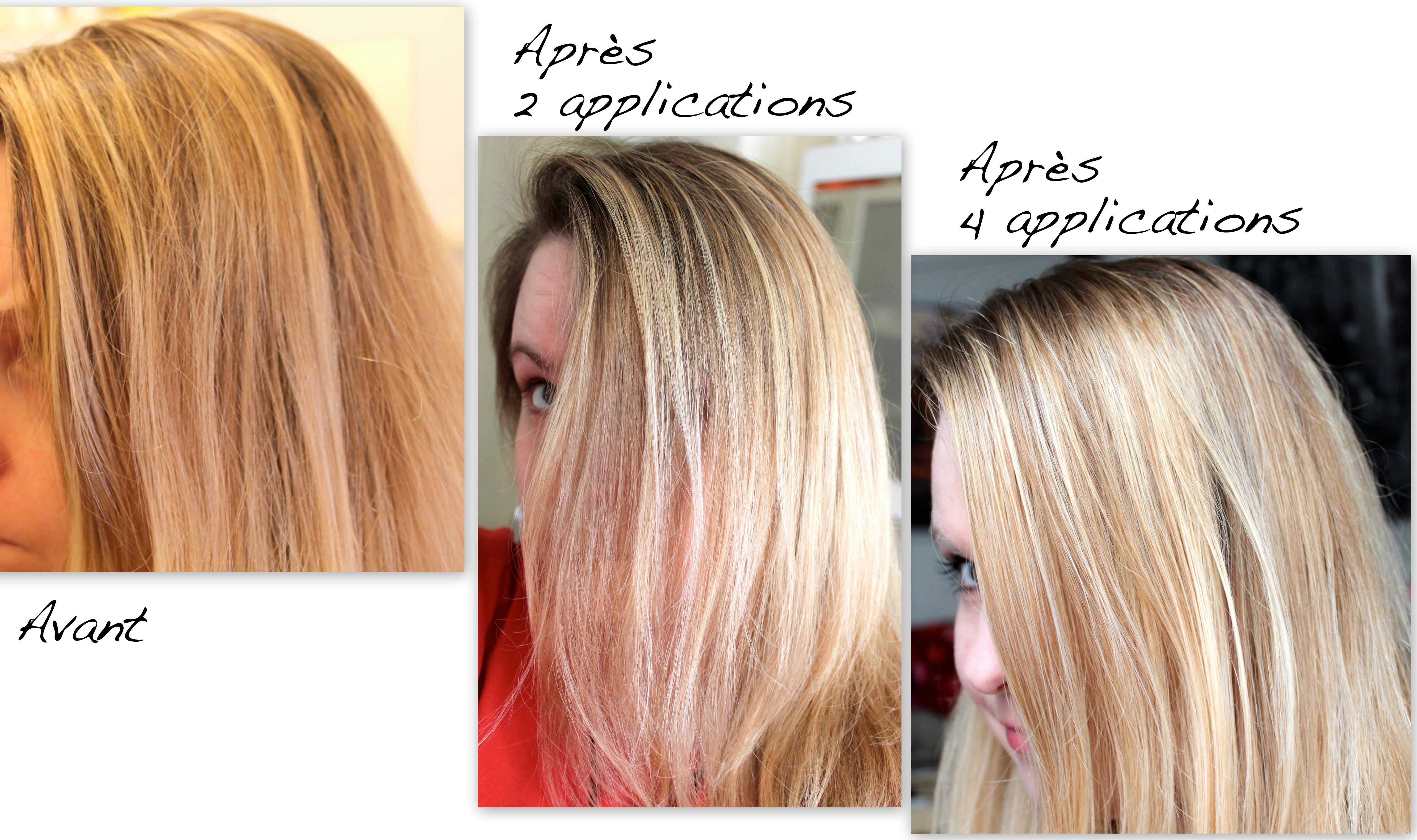Les médicaments contre la chute des cheveux chez les femmes à la défaillance hormonale